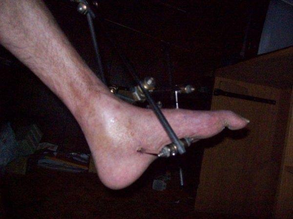 my foot.jpg
