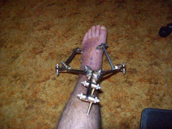 my foot2.jpg